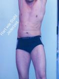 Muskel Vergleich-vorher