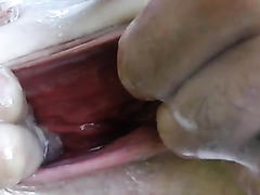 Saucy wife has her gaping asshole fisted really hard
