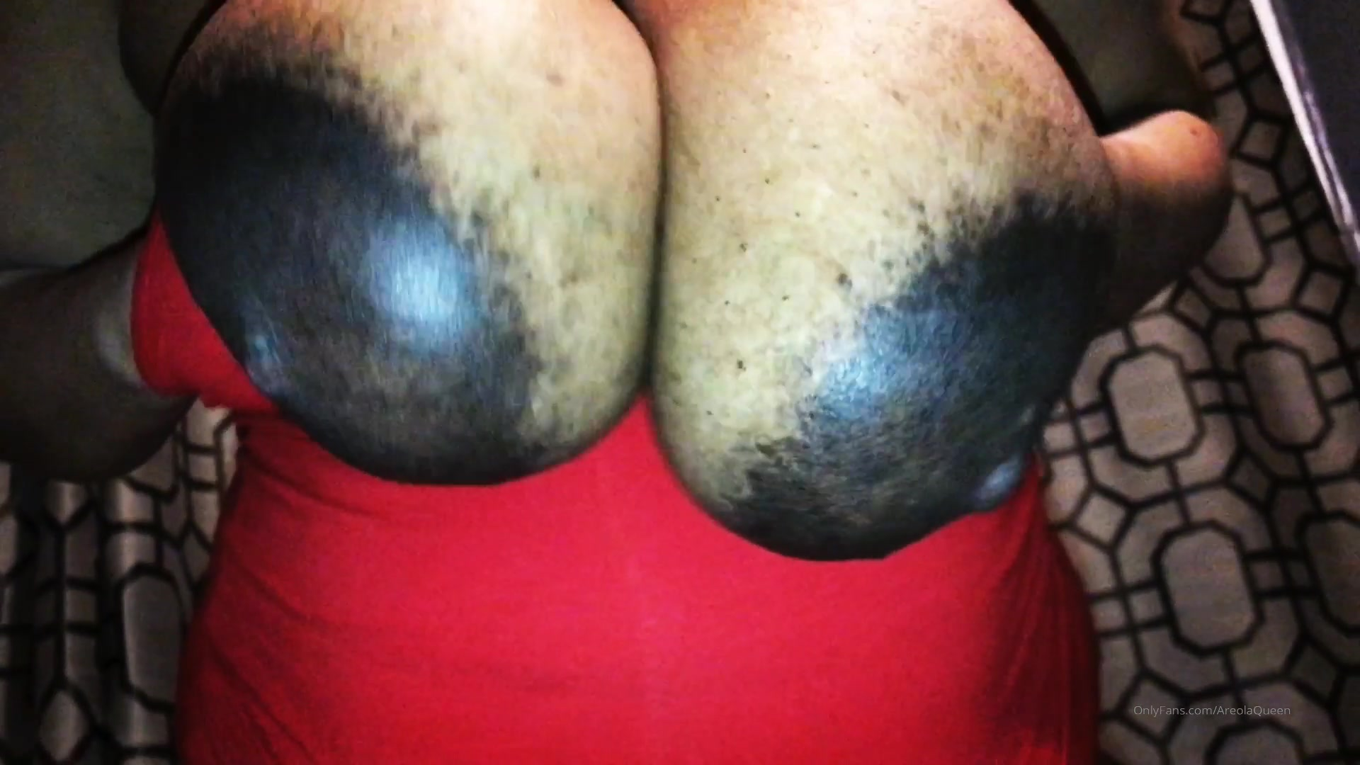 Pics areolas What Causes