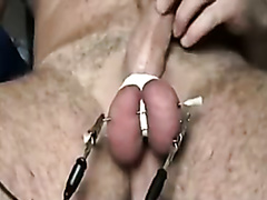CBT needles in the balls