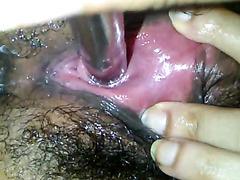 Close up female urethral sounding with large rod