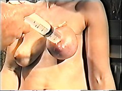 Saline inflation who breast is doing