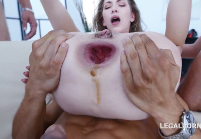 anal extreme Anal gape