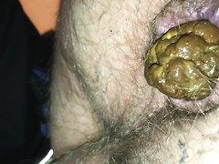 Hairy male ass shitting