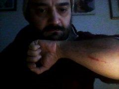 Kenelm Hatnex - I cut myself to blood