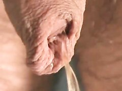 Foreskin 15