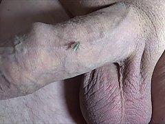 Mücken an der Eichel 2 / Behandlungsplan / Dr.Leo