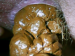 Urgent dump of thick and hard turd