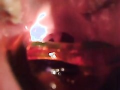 Swallow Gummy - video 6