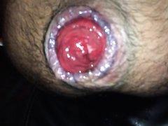 Lick my prolapse