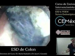 Curso De Endoscopia Intervencionista Casos en Vivo 3