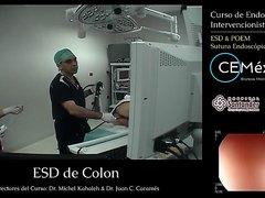 Curso De Endoscopia Intervencionista Casos en Vivo1