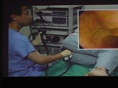 Kawamura Colorectal cancer screening